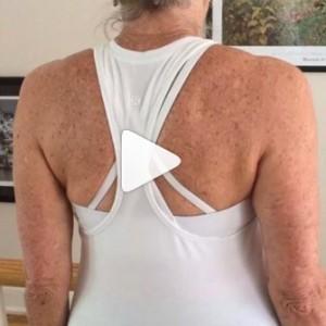Mobilizing the shoulders